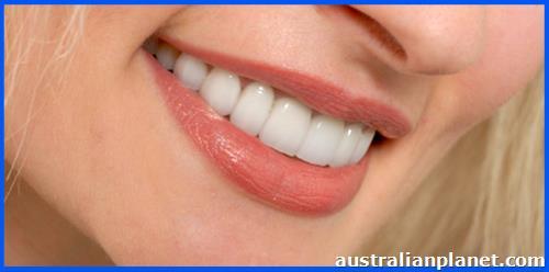 Safe Treatment of Porcelain Veneers in Melbourne in Croydon